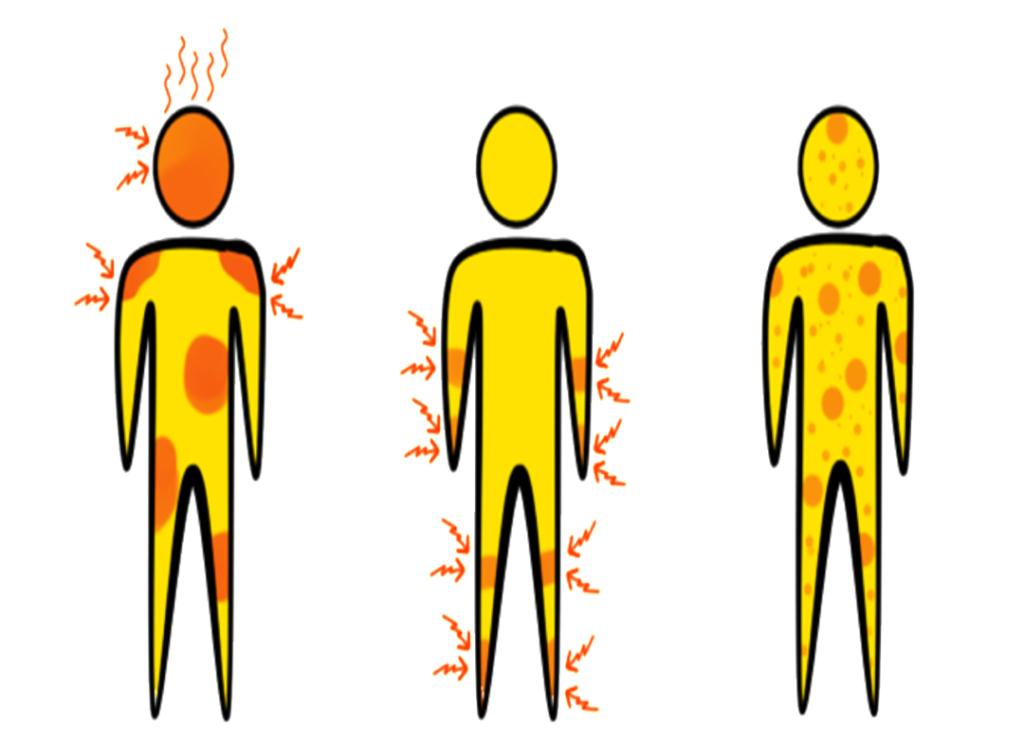 Leidest du unter körperlichen Symptomen?